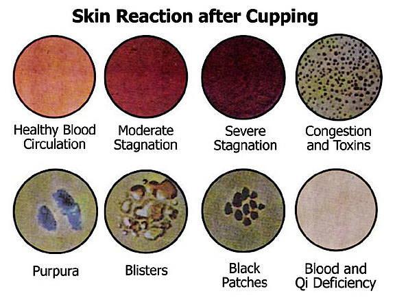 skin-reaction-after-cupping.jpg